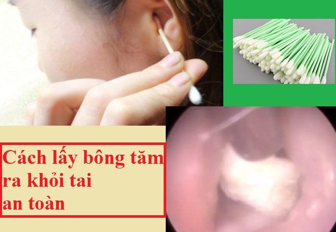 Cách lấy bông gòn tăm kẹt trong lỗ tai khi ráy sâu bên trong an toàn